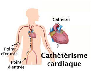 Cathétérisme cardiaque