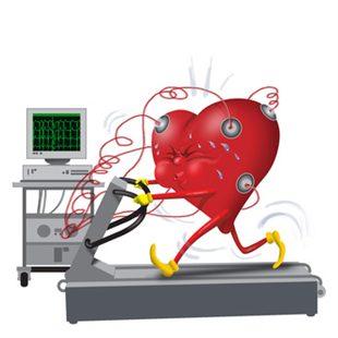 Électrocardiogramme d'effort