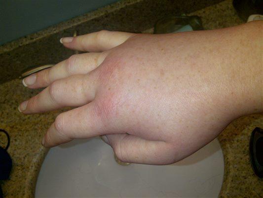 oedeme lymphatique pied gauche