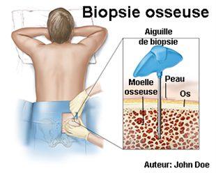 Biopsie de moelle osseuse