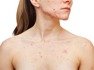 Traitement de l'acné : définition - docteurclic.com