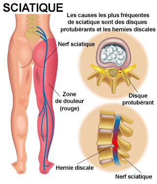 Sciatique Symptomes Traitement Definition Docteurclic Com
