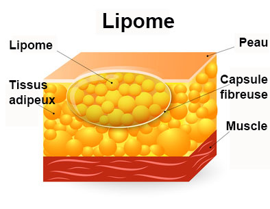 Lipome sympt mes traitement d finition for Graisse cuisse interieur