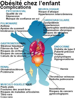 Les parasites dans les muscles chez la personne le traitement