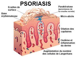 Les rappels sur le traitement du psoriasis par quels moyens