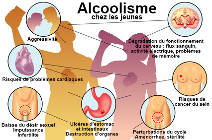 Accus de violences, il invoque un cocktail aux effets