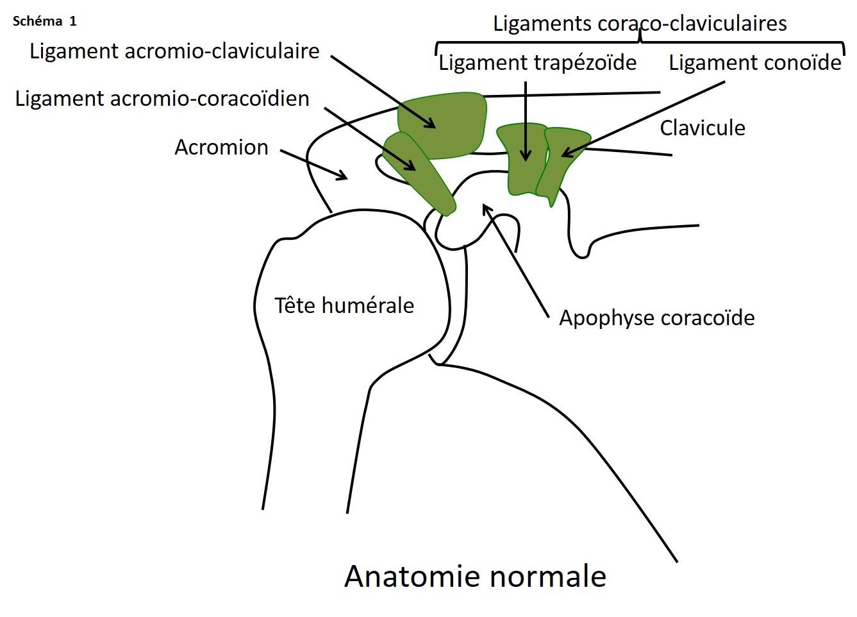 Disjonction acromio-claviculaire : définition..