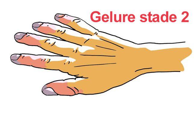 Gelures : symptômes, traitement, définition - docteurclic.com