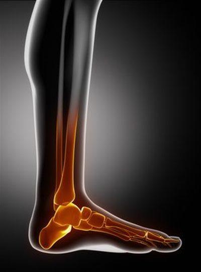 douleur au pied et gonflement