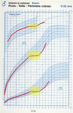 Déviations Standard Définition Docteurclic Com