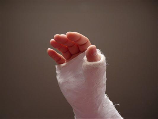 Fracture de la main : symptômes, traitement, définition ...