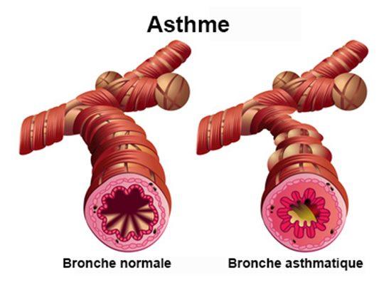 """Résultat de recherche d'images pour """"asthme"""""""