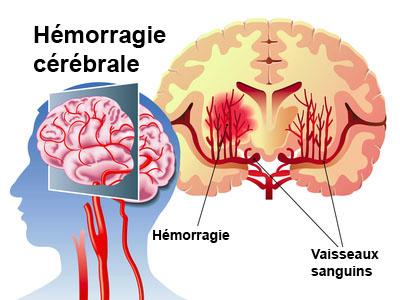 Hémorragie cérébrale, avc hémorragique, accident