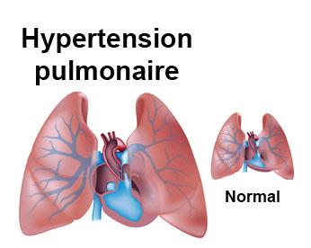 Hypertension artérielle pulmonaire : symptômes, traitement..
