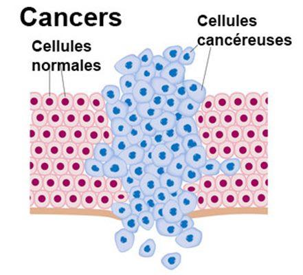 cancer cellule maligne anemie 3 mois grossesse