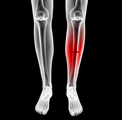 Fracture de la jambe : symptômes, traitement, définition ...