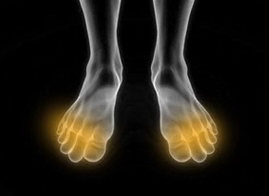 fourmillement orteils pieds