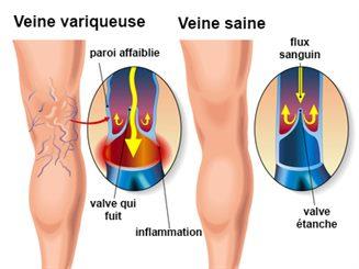 Varicele - Cauze, Simptome, Tratament   Ayurmed