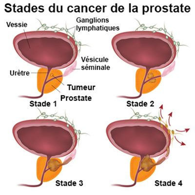 Short or Long Schemes of Antibiotic Prophylaxis for Prostate Biopsy