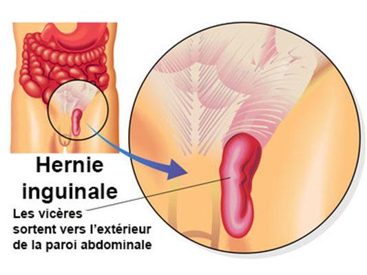 Hernie inguinale : symptômes, traitement, définition ...