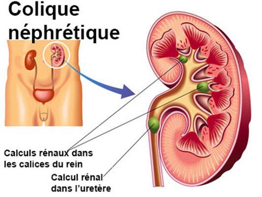 colique néphrétiques symptômes
