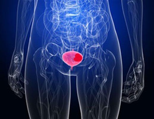 Cancer maligne vessie, Organe toxine