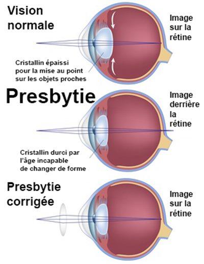 """Résultat de recherche d'images pour """"image presbytie"""""""