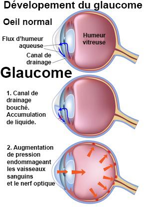 Glaucome : symptômes, traitement, définition - docteurclic.com