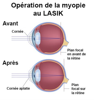 b6140c58a0c257 Lasik   définition, technique - docteurclic.com