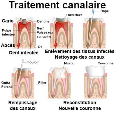 medicament contre les douleurs dentaires