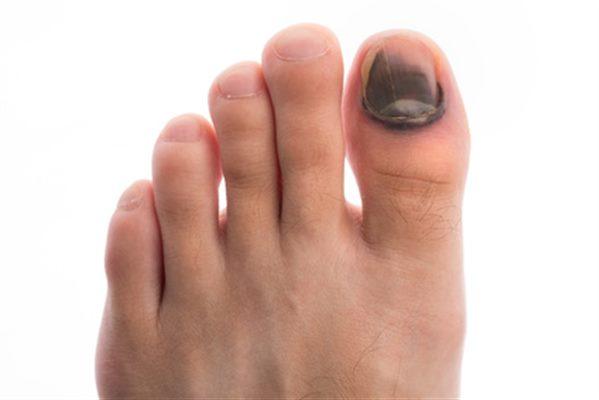 Hématome sous l'ongle : symptômes, traitement, définition ...