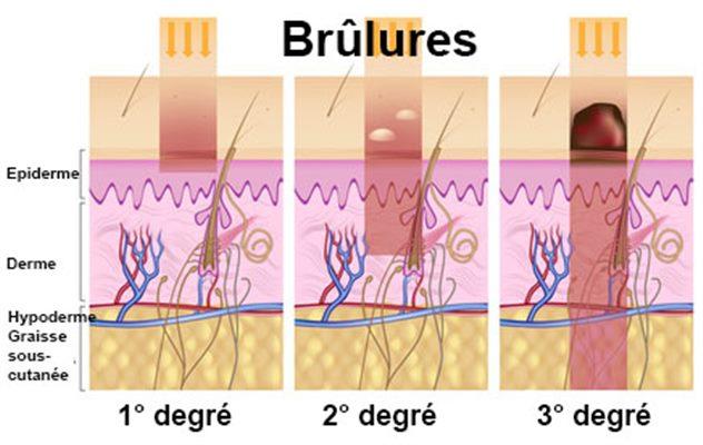 Brûlures : symptômes, traitement, définition - docteurclic.com