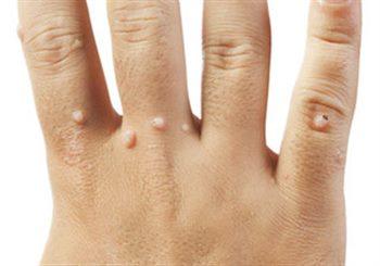 Boules sous la peau : symptômes, traitement, définition ...