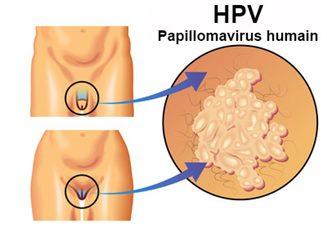 Vulvite : symptômes, traitement, définition - docteurclic.com