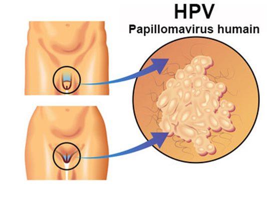 avoir le papillomavirus enceinte)