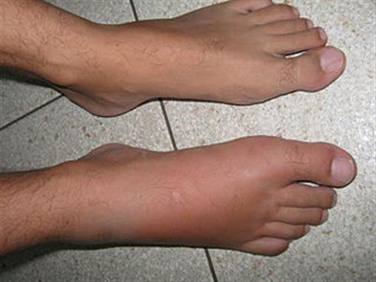 pied gonfle avec douleur