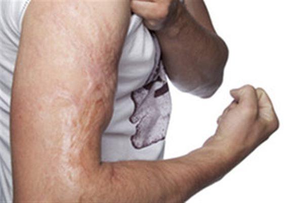 Suites des brûlures : symptômes, traitement, définition ...