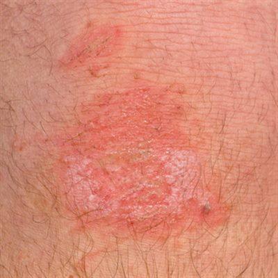 Lésions de la peau et excoriations : définition ...