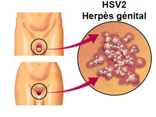 Herpès de sexe anal