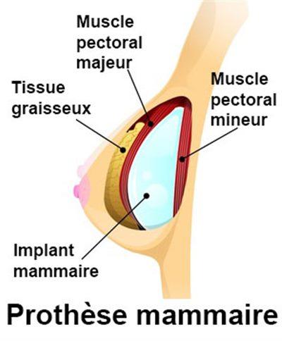 Prothèses mammaires, implants mammaires, augmentation ...
