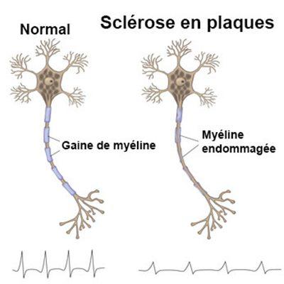Sclérose en plaque : symptômes, traitement, définition ...
