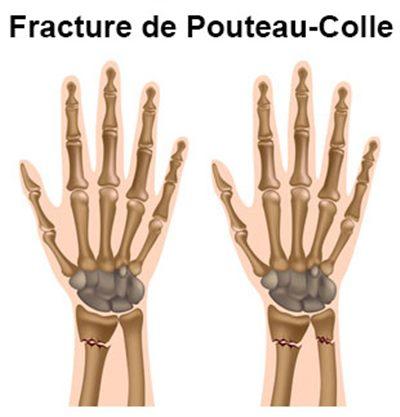vente en ligne 100% d'origine dernier style de 2019 Fracture du poignet : symptômes, traitement, définition ...