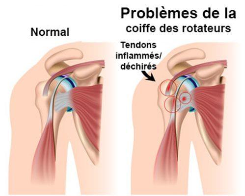 Tendinite de l'épaule : symptômes, traitement, définition ...