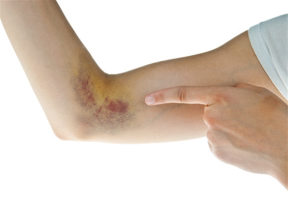 Hématome : symptômes, traitement, définition - docteurclic.com