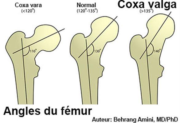 Coxa valga : symptômes, traitement, définition - docteurclic com