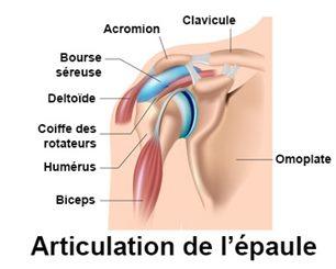 Épaule gelée - Capsulite : symptômes, traitement, définition ...