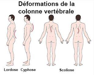 Scoliose : symptômes, traitement, définition - docteurclic.com