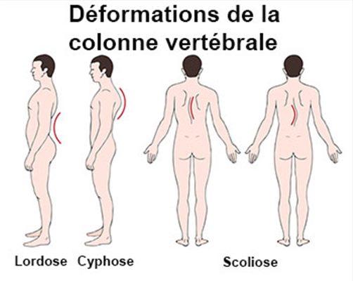 Déformations acquises de la colonne vertébrale : symptômes