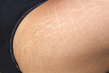 eczema fessier adulte
