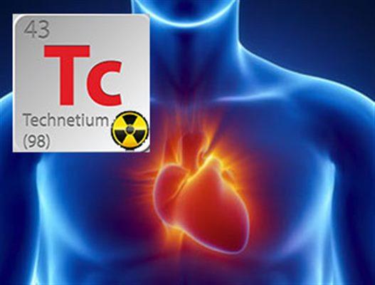 Scintigraphie Cardiaque Examen Docteurclic Com